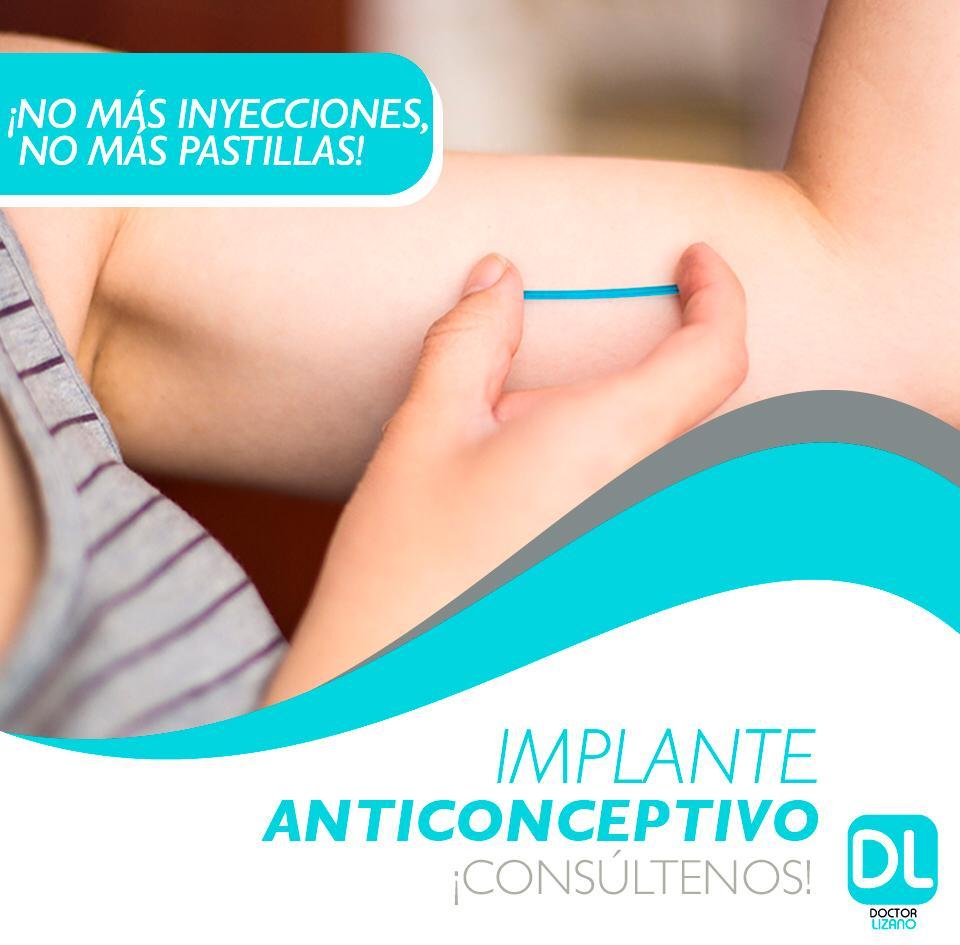 ¿Qué es y como funciona el implante anticonceptivo?